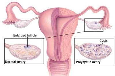 Polycystic Ovarian Disease Treatment
